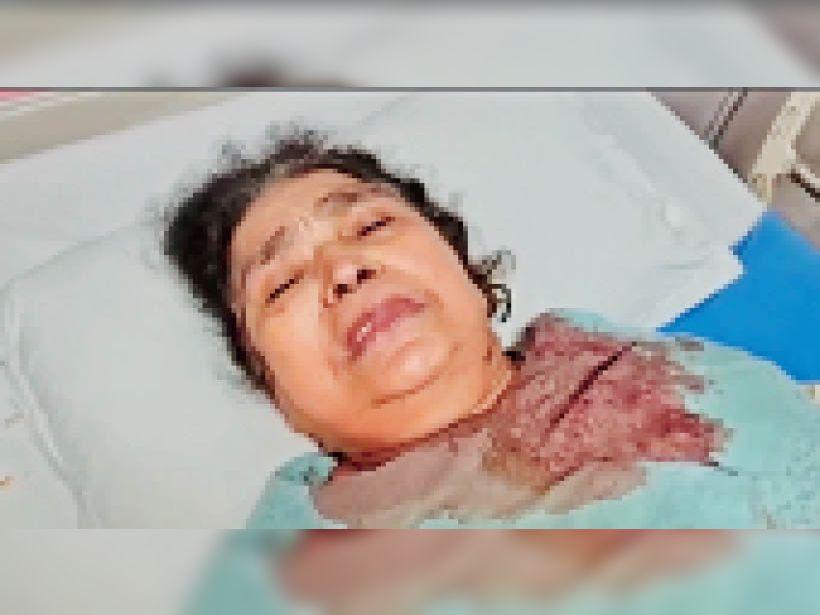 कान काटने के बाद घायल बुजुर्ग महिला कमला सोनी। - Dainik Bhaskar