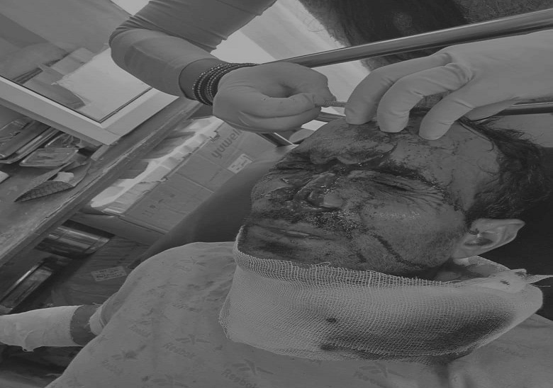 शिमला के नेरवा में जंगल में लकड़ी लेने गए तीन लोगों ने छिपकर बचाई जान, दोनों घायलों का IGMC में चल रहा इलाज|शिमला,Shimla - Dainik Bhaskar
