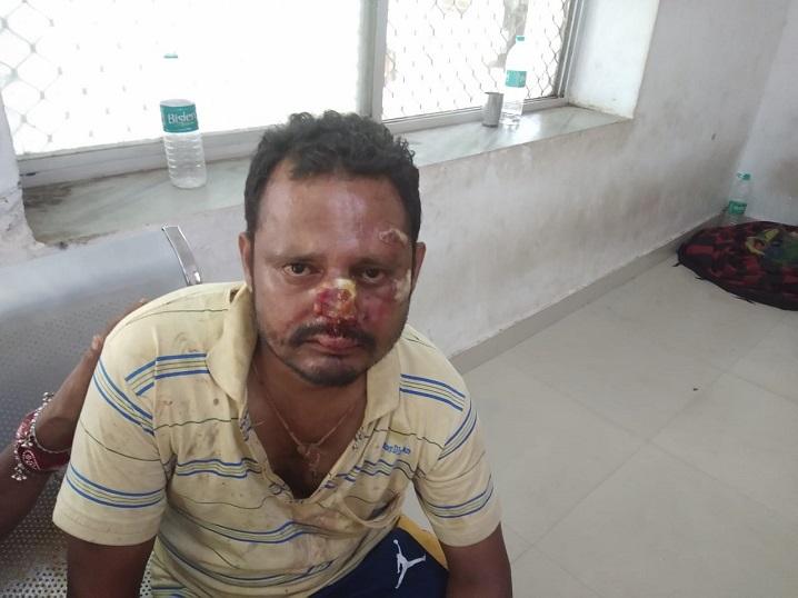 एक साल पहले पीहर चली गई थी महिला, आज अचानक लौटी, पति ने घर में घुसने से रोका, तो बेटियों, भाई और जीजा के साथ मिलकर कर दी पिटाई|बांसवाड़ा,Banswara - Dainik Bhaskar