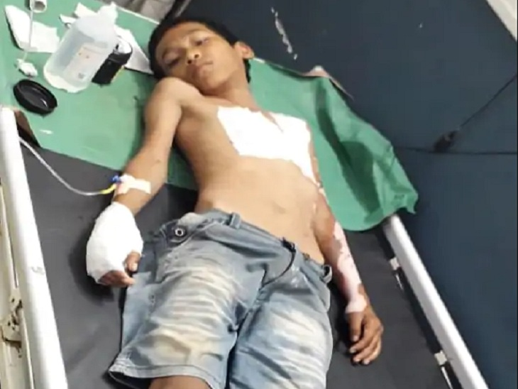 रेवाड़ी के बावल में एक निजी अस्पताल में भर्ती राकेश। - Dainik Bhaskar