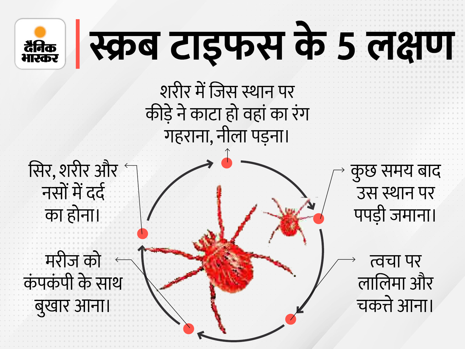 महिला में स्क्रब टाइफस की पुष्टि, शरीर के कई अंगों को करता है प्रभावित; एक्सपर्ट्स ने बताए बचाव के उपाय मेरठ,Meerut - Dainik Bhaskar