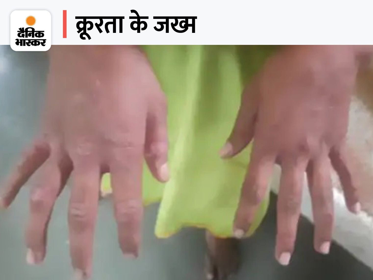15 साल की लड़की को 6 साल पहले बिहार से लेकर आई थी पत्नी, बंधक बना काम करवाते रहे; हाथ झुलसेमिले|कोटा,Kota - Dainik Bhaskar