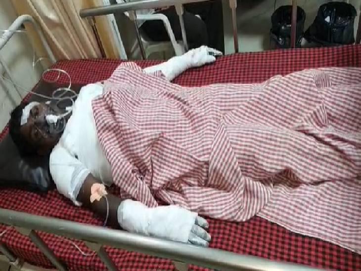 मंडला बार्डर स्थित मनेरी की घटना, तीन मजदूर झुलसे, दो की हालत गंभीर; छह महीने पहले एक मजदूर की हो चुकी है मौत|जबलपुर,Jabalpur - Dainik Bhaskar