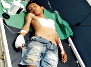 मोबाइल पर गेम खेलते समय झुलसा बच्चा उपचाराधीन। - Dainik Bhaskar