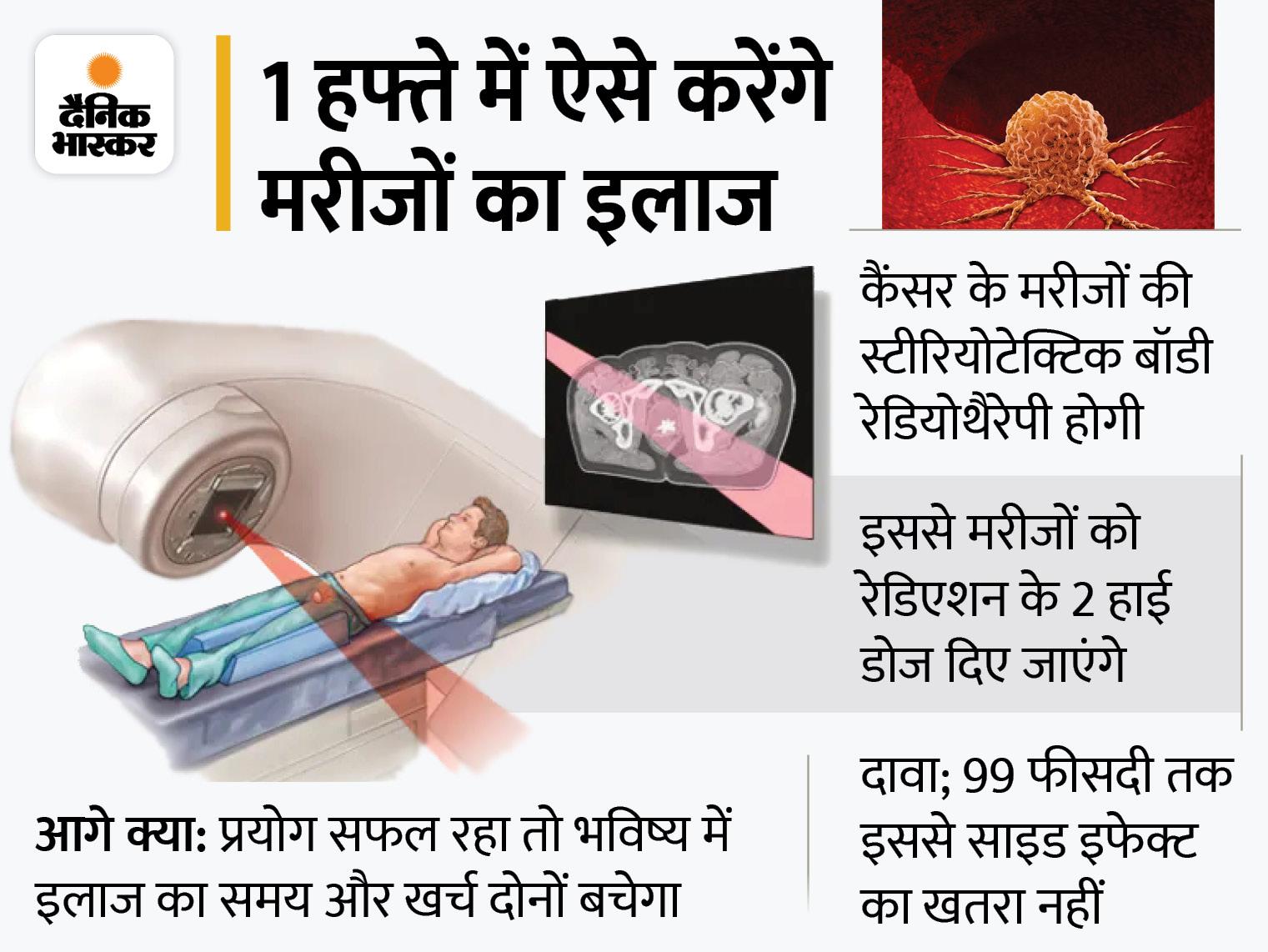 प्रोस्टेट कैंसर का एक हफ्ते में होगा इलाज, रेडिएशन की 2 हाई डोज से ट्यूमर खत्म करेंगे एक्सपर्ट; जानिए डॉक्टर्स कैसे करेंगे मरीजों का इलाज|लाइफ & साइंस,Happy Life - Dainik Bhaskar