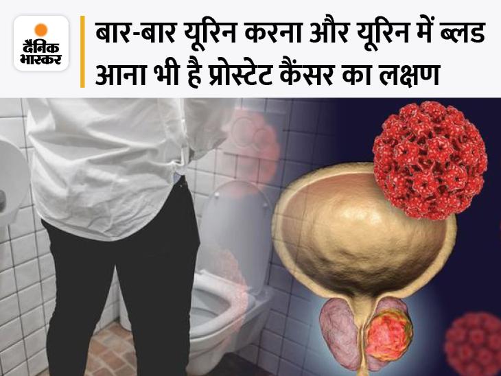 पेशाब करते समय तेज दर्द या इसमें खून आना भी है प्रोस्टेट कैंसर का लक्षण, पुरुषों में होने वाले इस कैंसर के सबसे ज्यादा मामले बड़े शहरों में|लाइफ & साइंस,Happy Life - Dainik Bhaskar