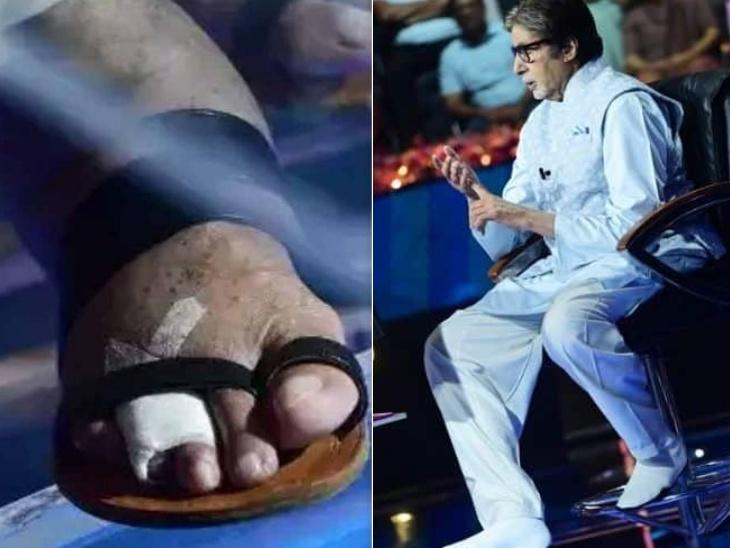फ्रैक्चर के साथ केबीसी 13 की शूटिंग कर रहे हैं अमिताभ बच्चन, पैर में लगी चोट की फोटो के साथ शेयर किया अनुभव|टीवी,TV - Dainik Bhaskar