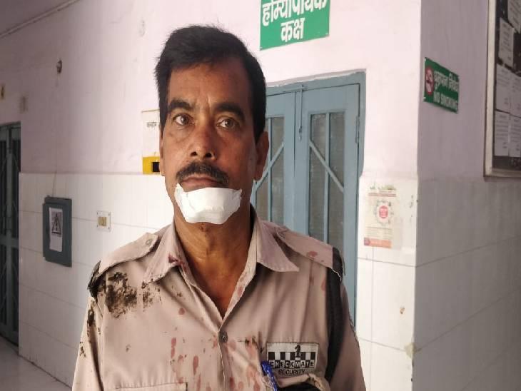 प्रभारी से लड़ रहे ठेकेदार के बेटे को बाहर निकाल रहे थे गार्ड, उसने फावड़े से हमला कर दो को किया जख्मी अमरोहा,Amroha - Dainik Bhaskar