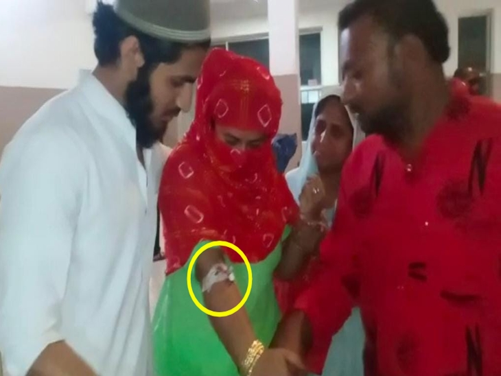इंदौर पुलिस को महिला ने बताया- शुरु में लगा कोई पत्थर आकर लगा है, हाथ से खून निकला तो पता चला किसी ने हमला किया|इंदौर,Indore - Dainik Bhaskar