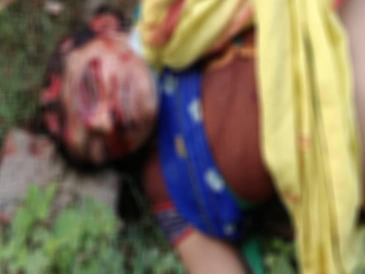 आंख, चेहरे और शरीर पर हैं चोट के कई निशान, घटना स्थल पर पुलिस को मिली फेयर एंड लवली क्रीम कौशांबी,Kaushambi - Dainik Bhaskar