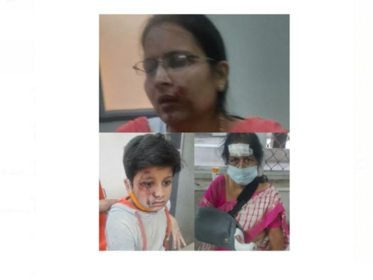 महिला की चेन व पर्स लूटा, स्कूटी नीचे गिरने से सास-बहू व पोता घायल; लोगों ने पकड़ने की कोशिश की लेकिन भागे|जोधपुर,Jodhpur - Dainik Bhaskar