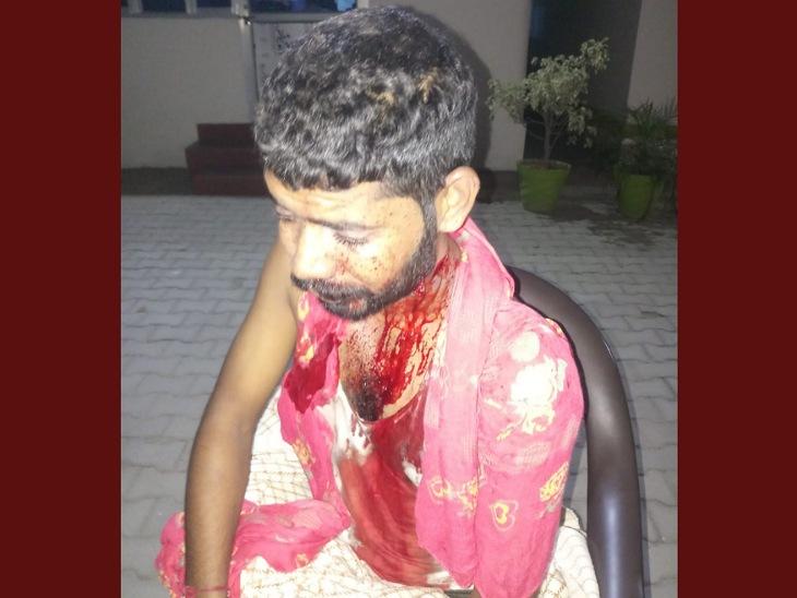 लूटपाट के लिए घर में घुसे थे बदमाश, किसान के बेटे ने दबोच लिया था एक लुटेरा, साथी को छुड़ाने के लिए आरोपी ने चलाई गोली|मुरादाबाद,Moradabad - Dainik Bhaskar