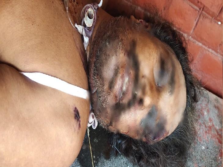 मुंह से निकल रहा था खून और शरीर पर चोट के निशान; पुलिस बोली-पोस्टमार्टम के बाद स्पष्ट होगा मर्डर या सुसाइड चंडीगढ़,Chandigarh - Dainik Bhaskar