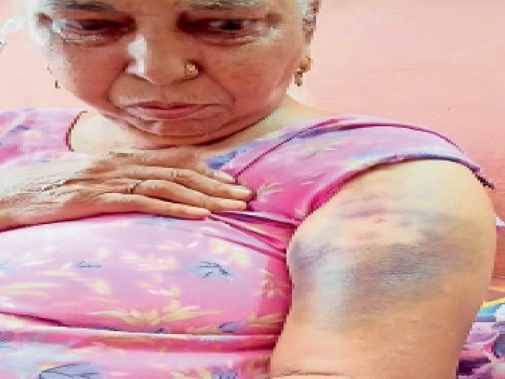 बालियां छीनने के लिए 62 वर्षीय महिला की आंखों में मिर्ची डाली, धक्का मारकर गिराया, बालियां तो बचीं लेकिन चोट लगी|अम्बाला,Ambala - Dainik Bhaskar