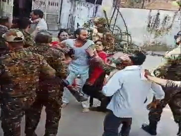 बकायदार को घर से घसीटकर बाहर लाए, पहले डंडे फिर बंदूक के बट से पीट-पीट किया घायल, शरीर पर छपे डंडों के निशान|ग्वालियर,Gwalior - Dainik Bhaskar