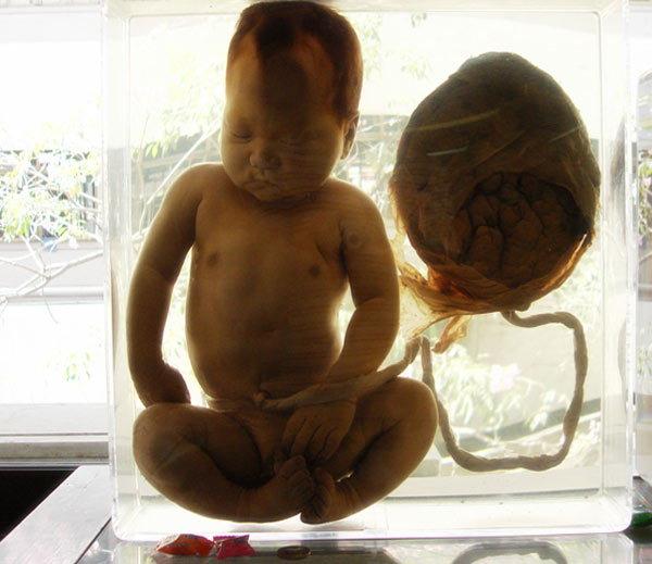विचित्र होता हा सिरिअल किलर, मुलांची हत्या करून खात होता हृदय आणि लिव्हर| - Divya Marathi