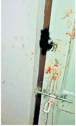 चाेरट्यांनी घरातील महिलेचे केस बंद दारामध्ये अडकवून महिलेला मारहाण केली दारात गुंतलेले महिलाचे केस - Divya Marathi