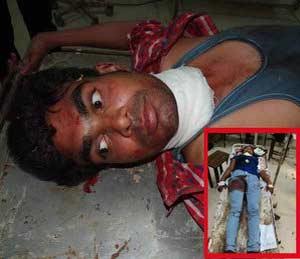 ताजमहालजवळ हिंदू-मुस्लिम प्रेमीयुगुलाचा ब्लेडने गळा कापून आत्महत्येचा प्रयत्न देश,National - Divya Marathi
