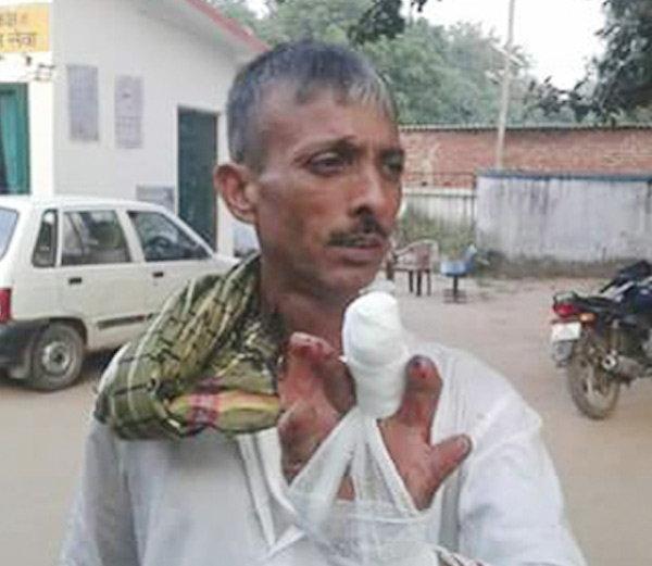 बिहारः नितीश CM झाल्यावर हा समर्थक कापतो बोट, बाबाला करतो अर्पण| - Divya Marathi