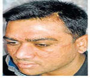 नायलॉन मांजामुळे शिक्षकाचा अपघात नाशिक,Nashik - Divya Marathi