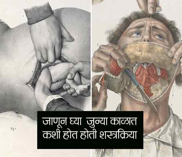 OMG ! 200 वर्षांपूर्वी असे होत होते ऑपरेशन, रुग्णाला पाजायचे दारू, पाहा PHOTOS|देश,National - Divya Marathi