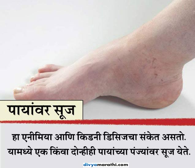 Alert: पाय देतात आजारांचे 8 संकेत, यांना करु नका इग्नोर...|देश,National - Divya Marathi