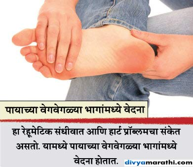 Alert: पाय देतात आजारांचे 8 संकेत, यांना करु नका इग्नोर...  - Divya Marathi