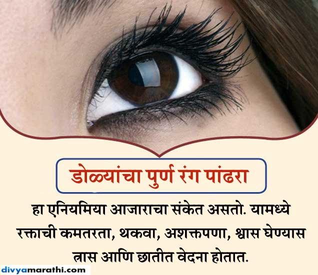डोळ्यांच्या रंगावरुन ओळखा आजारांचे संकेत, असा करा बचाव..|जीवन मंत्र,Jeevan Mantra - Divya Marathi