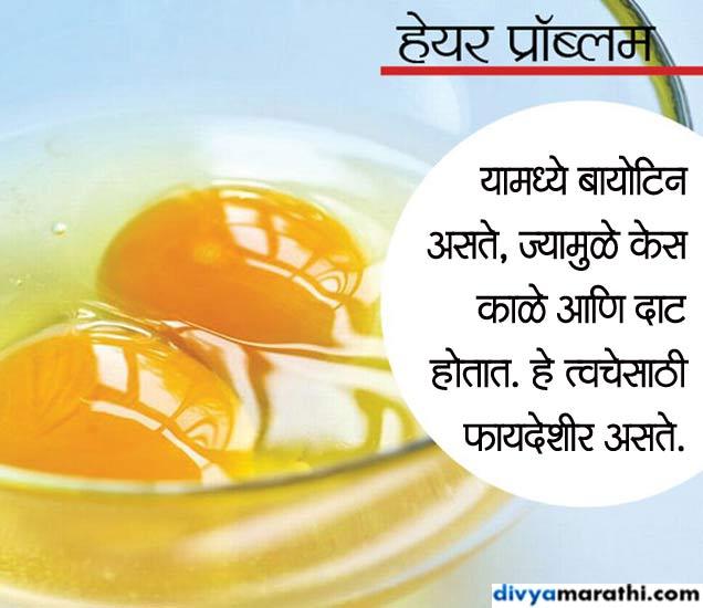 कच्चे अंडे खाल्ल्याने केस होतील काळे आणि दाट, असेच 10 फायदे... जीवन मंत्र,Jeevan Mantra - Divya Marathi