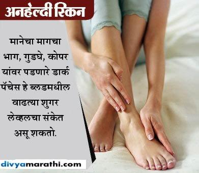 काही आठवड्यांअगोदर दिसतात डायबिटीजचे 12 संकेत, करु नका इग्नोर...|जीवन मंत्र,Jeevan Mantra - Divya Marathi