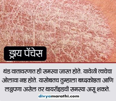 तुमची स्किन देते या 7 आजारांचे संकेत, यांना करु नका इग्नोर...|जीवन मंत्र,Jeevan Mantra - Divya Marathi