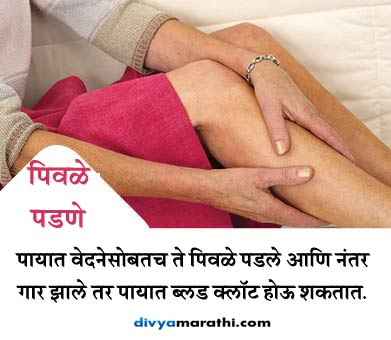 इग्नोर करु नका ब्लड क्लॉटिंगचे हे 10 संकेत, हा आहे गंभीर आजाराचा इशारा..|जीवन मंत्र,Jeevan Mantra - Divya Marathi