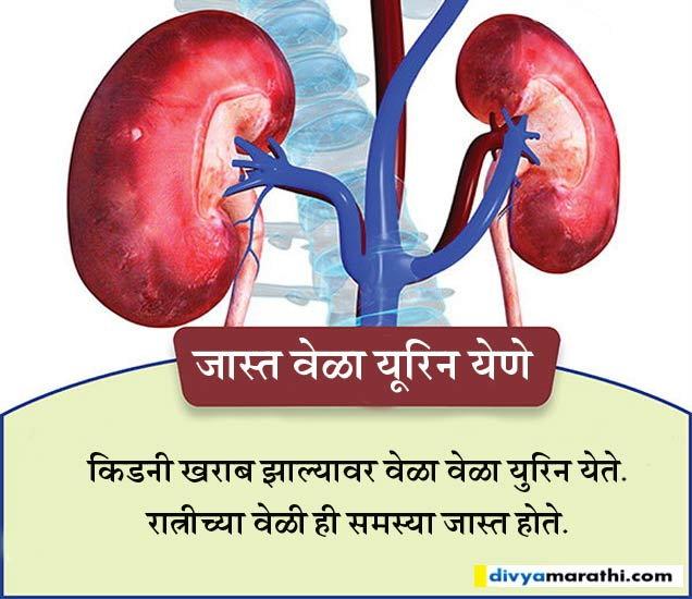 किडनी आजाराचे आहेत १० संकेत, हे १० पदार्थ खाल्ल्याने समस्या होईल दूर...|जीवन मंत्र,Jeevan Mantra - Divya Marathi