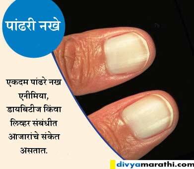 नखांवरुन जाणुन घ्या तुम्ही किती हेल्दी आहात, 9 आजारांचे संकेत... जीवन मंत्र,Jeevan Mantra - Divya Marathi