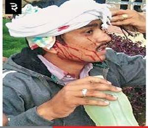 लाठीमारात डोके फुटलेला एक मोर्चेकरी. - Divya Marathi