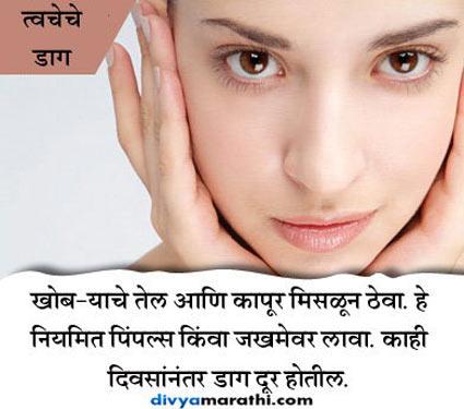 कापराने नष्ट होतील चेह-यावरील डाग, जाणुन घ्या असेच 15 Amazing फायदे...|जीवन मंत्र,Jeevan Mantra - Divya Marathi