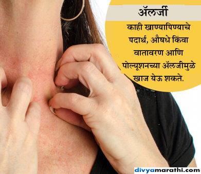 खाज असू शकते या 10 आजारांचा संकेत, चुकूनही करू नका दुर्लक्ष|जीवन मंत्र,Jeevan Mantra - Divya Marathi