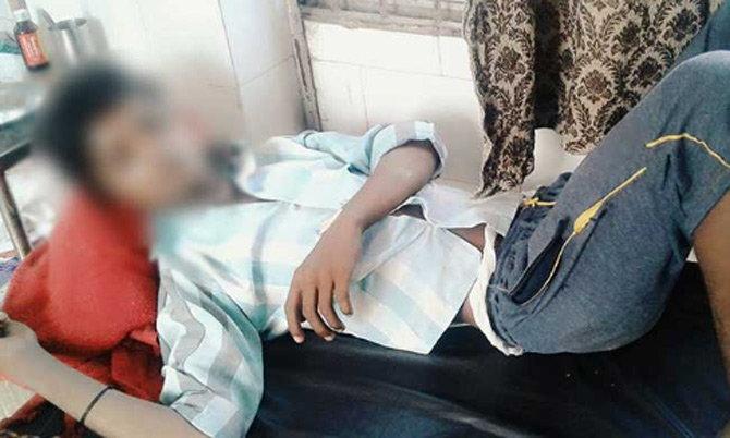 दोन अल्पवयीन मुलांवर दिल्लीत शस्त्रक्रिया करण्यात आली. - Divya Marathi