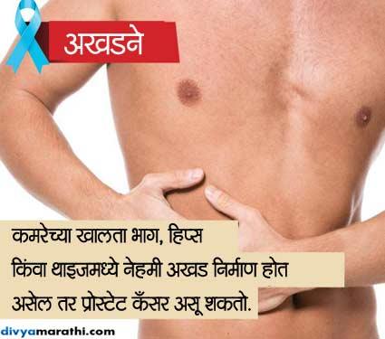 पुरुषांना होतो हा कॅन्सर, जाणुन घ्या 6 संकेत आणि बचावाच्या TIPS जीवन मंत्र,Jeevan Mantra - Divya Marathi