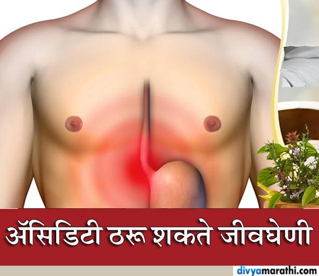अॅसिडिटीला करू नका इग्नोर, होऊ शकतात या 10 गंभीर आरोग्य समस्या|जीवन मंत्र,Jeevan Mantra - Divya Marathi