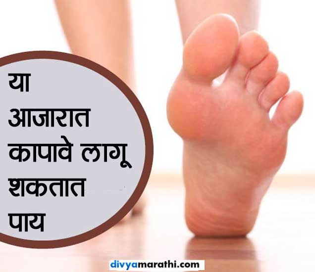 या आजारात कापावे लागू शकतात पाय, ओळखा याचे 10 संकेत...|जीवन मंत्र,Jeevan Mantra - Divya Marathi