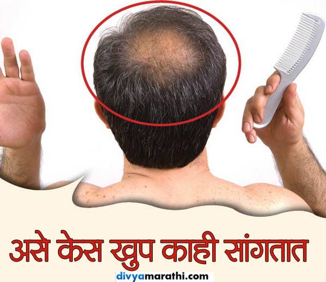 केसांवरुन जाणुन घ्या आरोग्याचे रहस्य, ओळखा हे 7 संकेत...|जीवन मंत्र,Jeevan Mantra - Divya Marathi