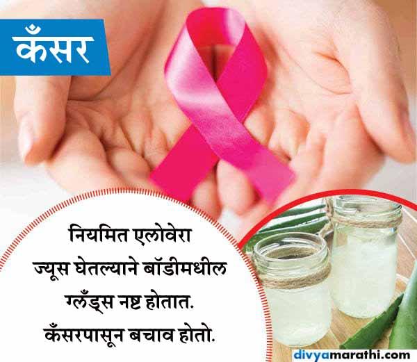 यूज करा फक्त एक चमचा एलोवेरा, होतील हे 10 Amazing फायदे जीवन मंत्र,Jeevan Mantra - Divya Marathi
