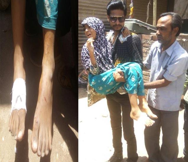 स्फोटात 10 आणि 11 वर्षांचे एक मुलगा आणि मुलगी जखमी झाले. - Divya Marathi