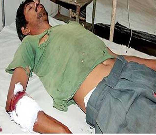 बिबट्याच्या हल्य्यात जखमी झालेला दुरसिंग बारेला. - Divya Marathi
