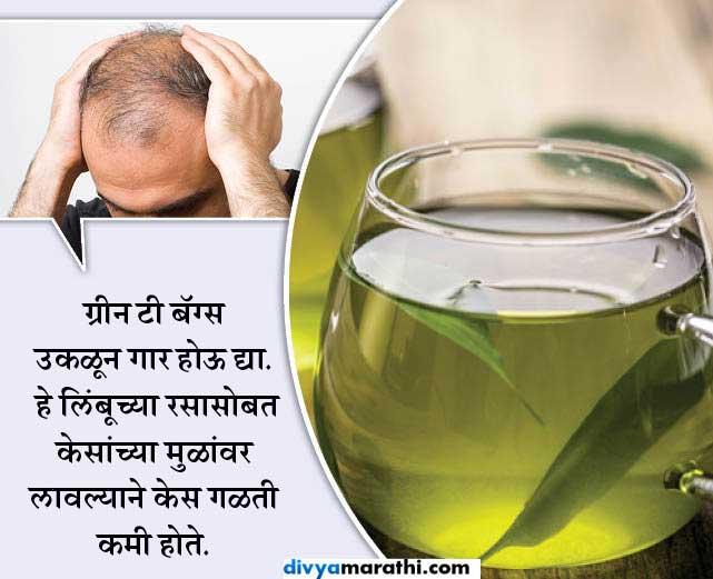 तारुण्यात पुरुषांना पडतेय टक्कल, जाणुन घ्या कशी थांबेल केस गळती... जीवन मंत्र,Jeevan Mantra - Divya Marathi