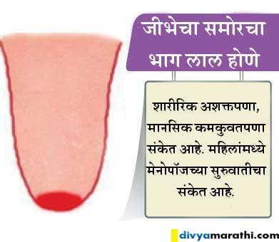 जीभेच्या रंगावरुन समजेल तुम्ही किती हेल्दी आहात, ओळखा हे 8 संकेत|जीवन मंत्र,Jeevan Mantra - Divya Marathi