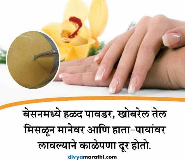 बेसनाचे 10 घरगुती उपाय : स्किन होईल हेल्दी आणि ब्यूटीफुल जीवन मंत्र,Jeevan Mantra - Divya Marathi