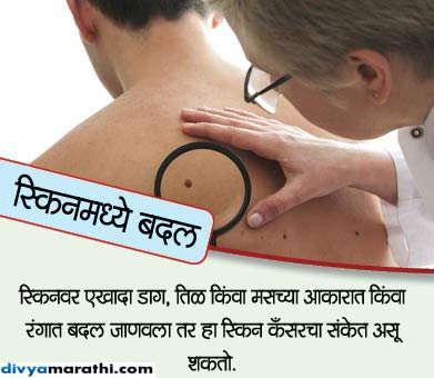 तुम्ही पुरुष आहात तर इग्नोर करु नका कँसरचे हे 10 संकेत...|जीवन मंत्र,Jeevan Mantra - Divya Marathi