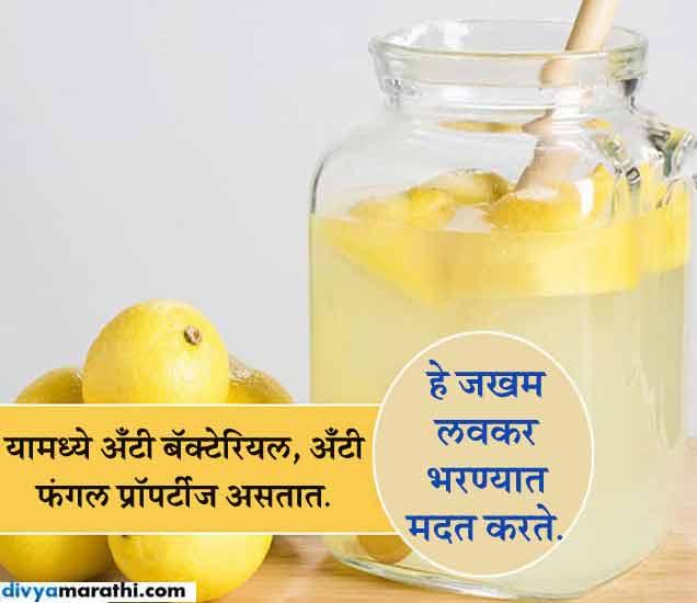 बेकिंग सोड्यामध्ये मिसळा लिंबूचा रस, होतील 10 फायदे...|जीवन मंत्र,Jeevan Mantra - Divya Marathi
